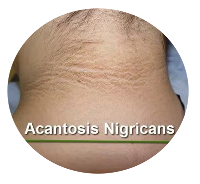 acantosis negricans